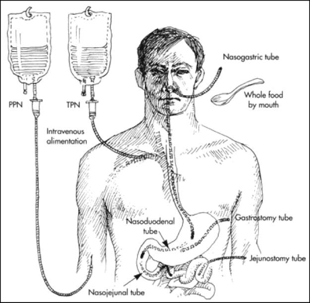 Total Parenteral Nutrition (TPN) | Gastroparesis Patient ...